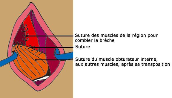 Les symptômes la faiblesse la mauvaise appétit la courbature dans les muscles