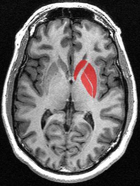 Le striatum, intervenant dans le contrôle des mouvements, est particulièrement touché